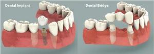 dental implant vs bridge