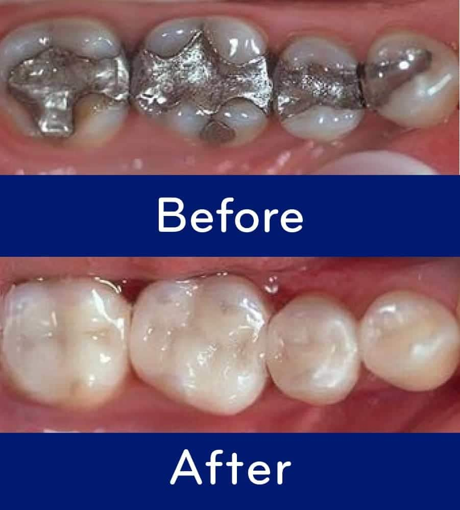Ozone Treatment For Cavities In Rockville