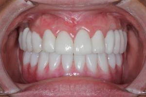 Implant Retained Over Denture
