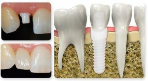 zirconia implant dentist