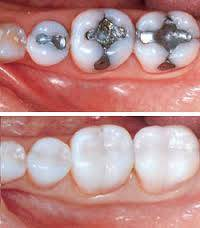 porcelain fillings