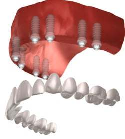 Best Way to do Full Mouth of Dental Implants in Rockville ...