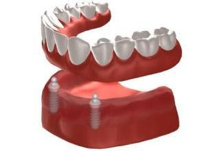 dental implant overdenture