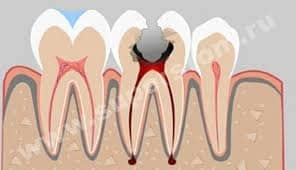 are root canals safe?