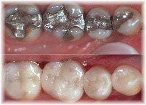 find a mercury free dentist