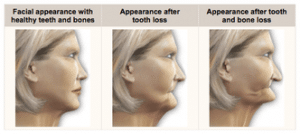dental implants bone loss