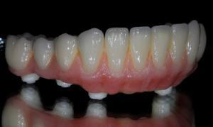 zirconia all on 4