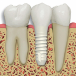 how much is a dental implant