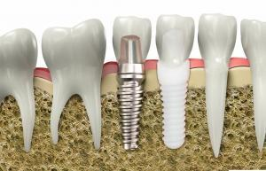 tooth implant dentist in north bethesda md