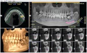tooth implant expert for bone grafting