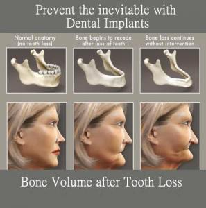 implant bone graft