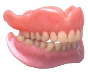 dentures vs implants