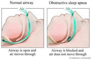 sleep apnea dentist rockville
