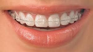 kids braces orthodontist in North Bethesda
