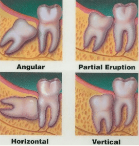 impacted wisdom tooth removal
