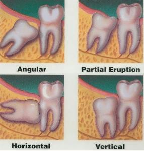 oral surgeon burtonsville md