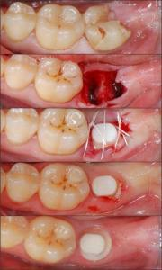 normal implant recovery period